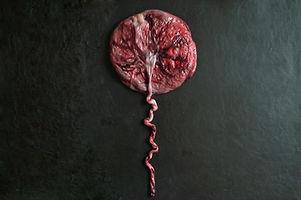 placenta simulating a balloon on black b