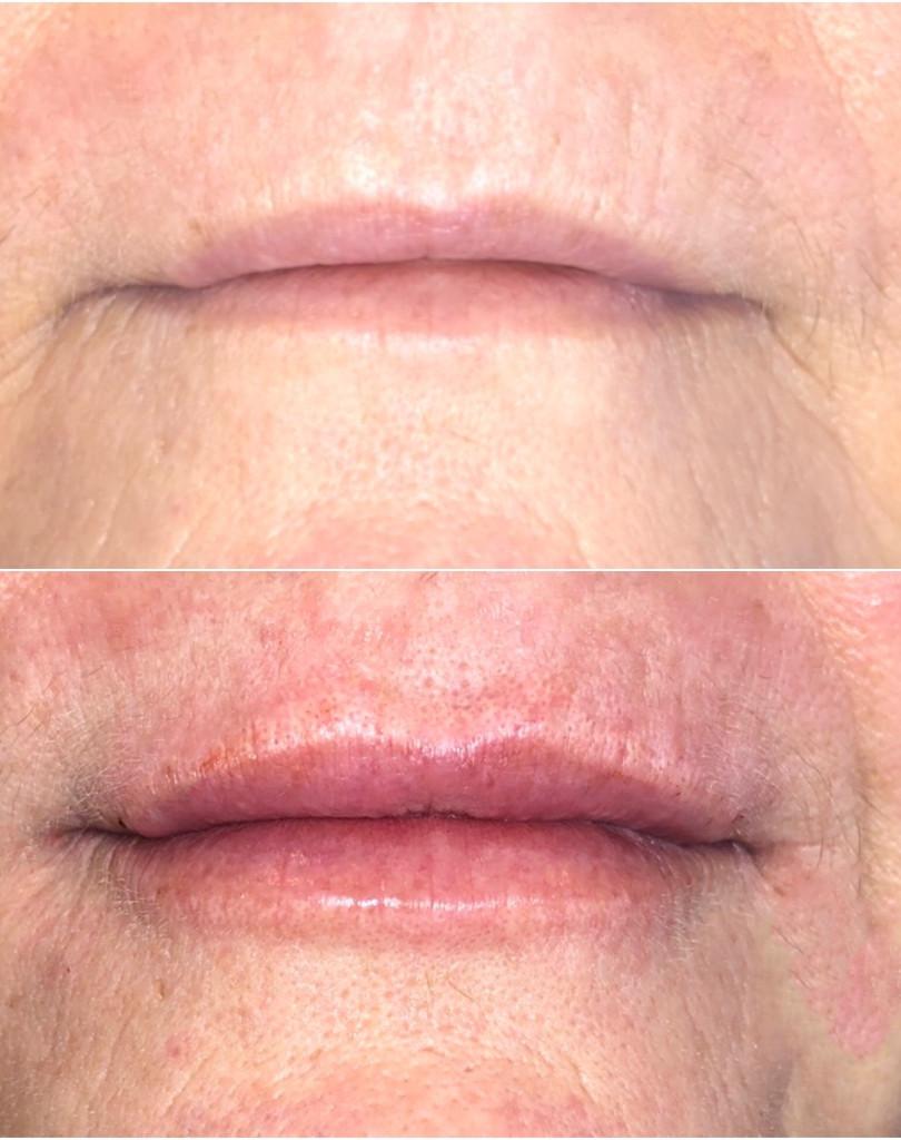 lip enhancement using 1 ml of Juvederm