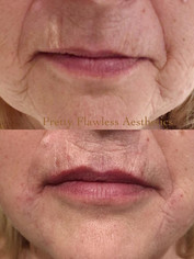 Nasolabial lines  and lip enhancement using 1 ml of Juvederm