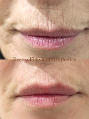 smokers line and lip enhancement using 1 ml of Juvederm