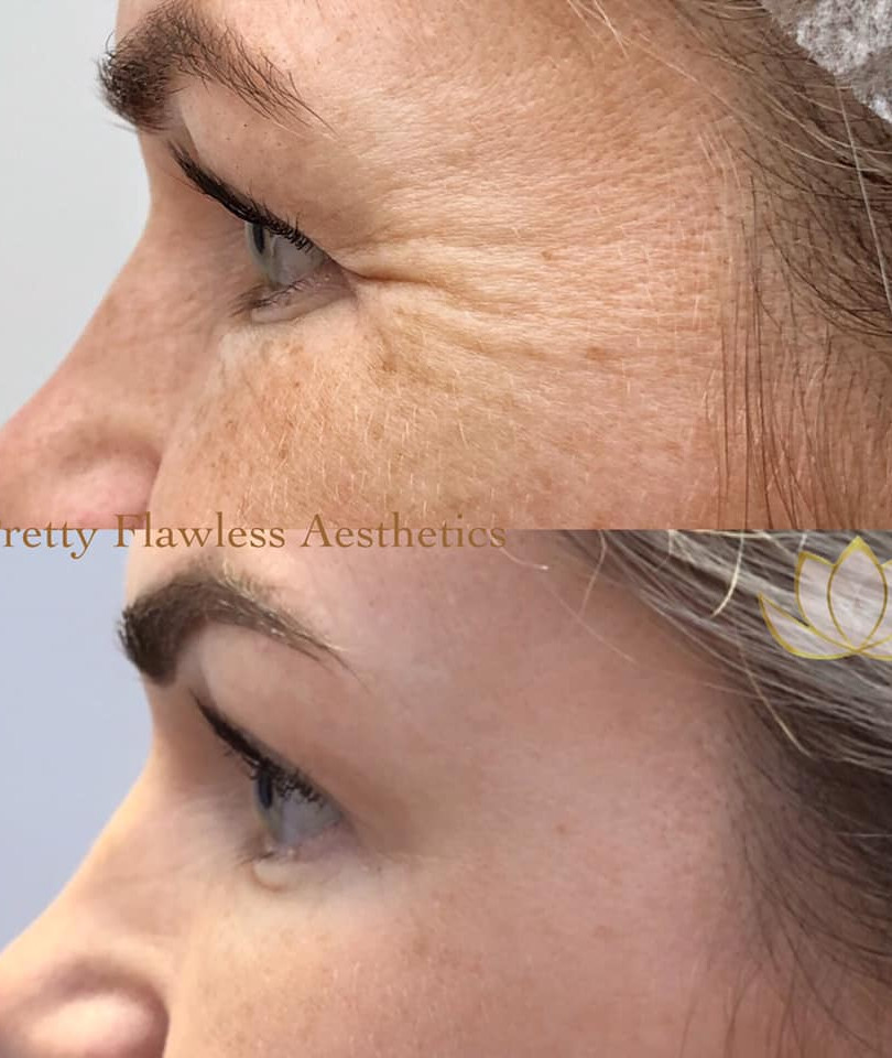 Botox® treatment for Crow's feet lines