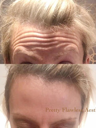 Botox® treatment for Forehead lines