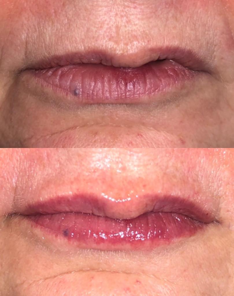 lip enhancement using 0.5 ml of Juvederm