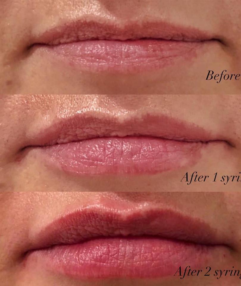 lip enhancement using 0.5-1 ml of Juvederm