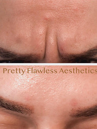Botox® treatment for Frown lines