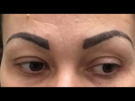 Makeup and Tattoo Removal?