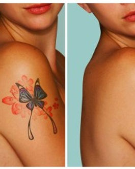 beforeafter-laser-tatoo-300x236.jpg