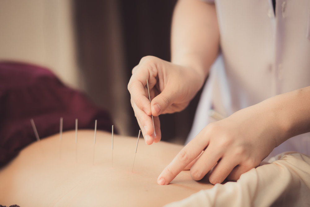 Initial Acupuncture Treatment ONLY