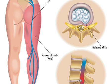 What is Lumbar Disc Herniation? Is it causing your Sciatica?