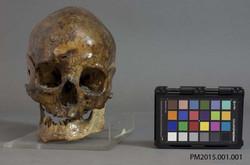 Skull Biospecimen
