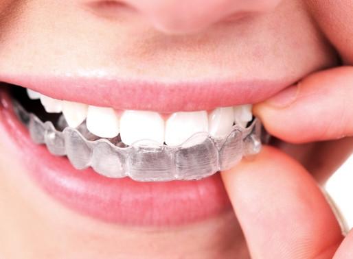 """Já ouviu falar em aparelho """"invisível"""" para os dentes?"""