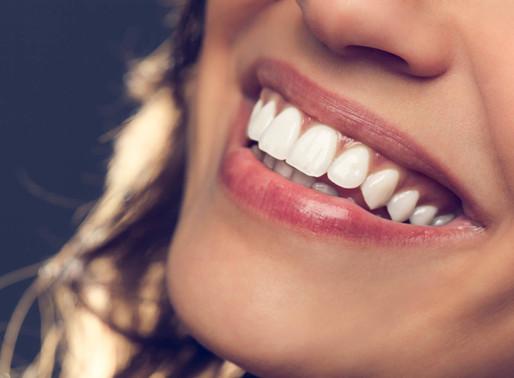 Facetas dentárias em Vitória: cuidados com a saúde e aparência dos dentes