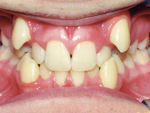 Correção de dentes apinhados favorece a higienização