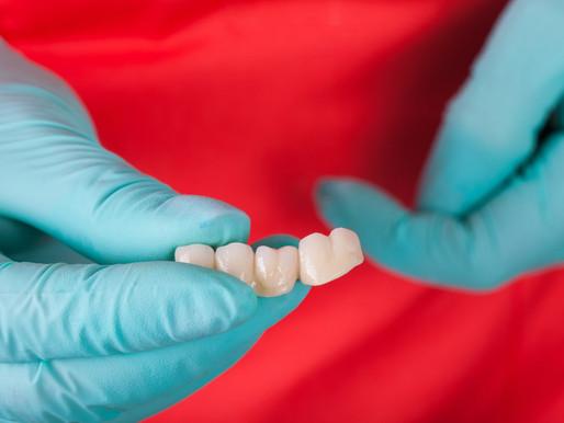 Entenda as consequências da perda óssea nos dentes e as opções de tratamento