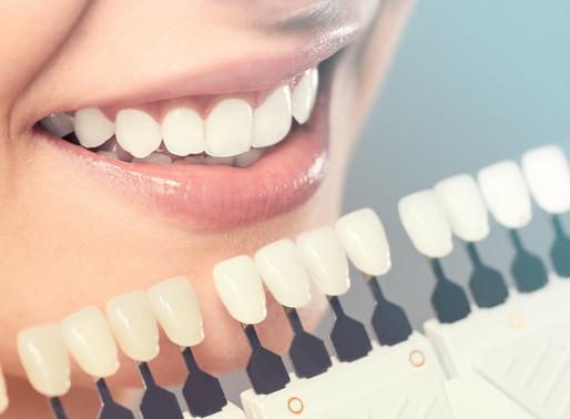 Faceta estética para dentes anteriores: como funciona o tratamento?