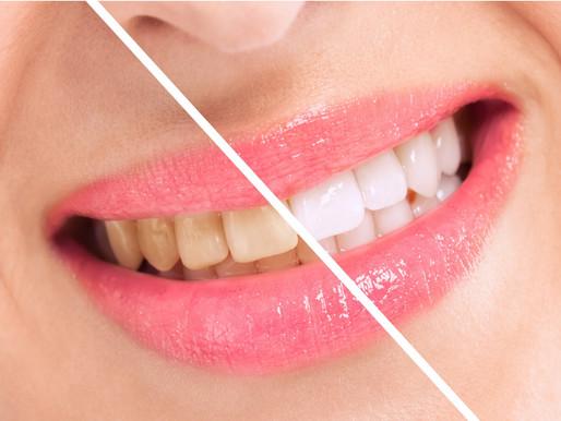 Qual o melhor tratamento para os dentes amarelados? Descubra aqui!