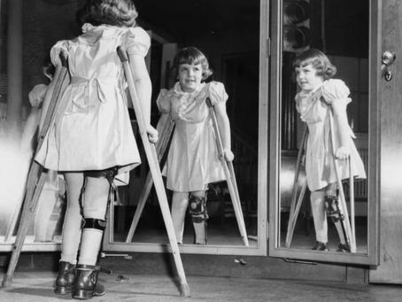 История детских кошмаров - полиомиелит.