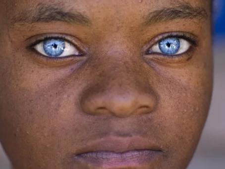 """""""Красивые глаза"""" как симптом болезни."""