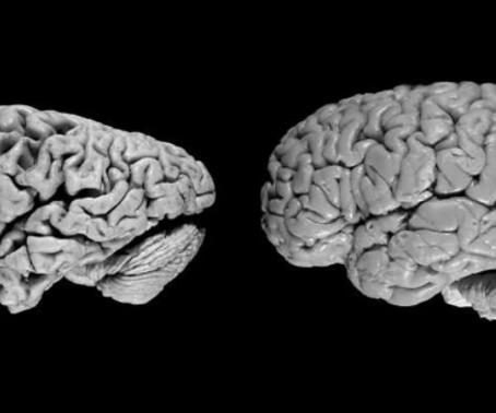 Болезнь Альцгеймера.