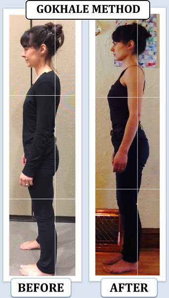 Gokhale Method Posture Transformation