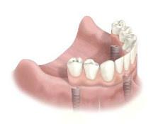 Implant Bridge Diagram