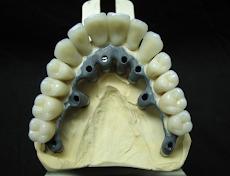 Implant Diagram 2