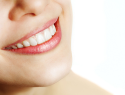 white teeth 3