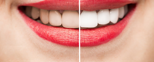 before-and-after-teeth-whitening-538x218