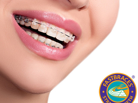 The Benefits of Straighter Teeth