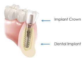 Implant Diagram 1