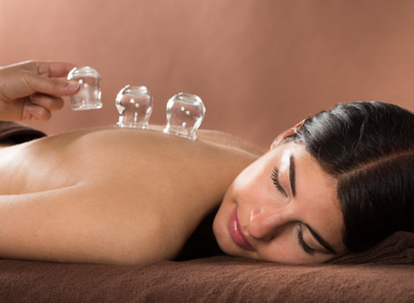 Cupping - Now Available for You!
