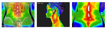 thermal images.png