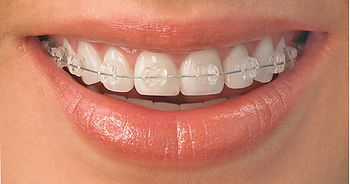 Ortodoncia, Brackets