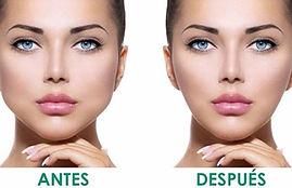 bichectomia cirujia facial,  disminuir mejillas