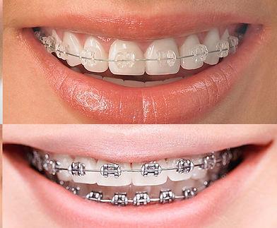 tipos-de-ortodoncia.jpg