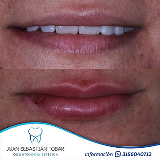 Acido hialuronico en labios.jpeg
