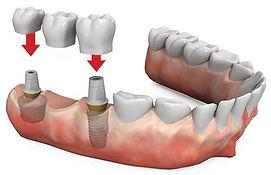 Odontologia en Cali implantes dentales