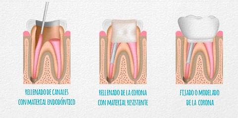 Odontologia en Cali Endodoncia