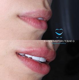 Relleno de labios con acido Hialuronico.