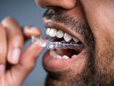 """This is how a """"mouth guard"""" can stop you snoring..."""