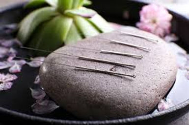 acupuncture isle of man.jpg
