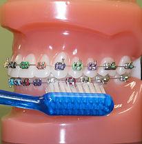 ha setole centrali più corte per una pulizia più accurata dell'apparecchio ortodontico