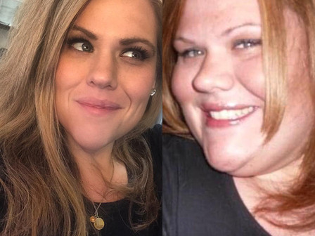 Cared For and Not Cured: Obesity Has No After Photo