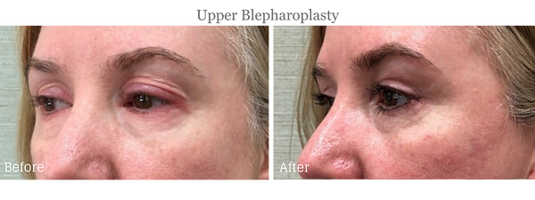 Before and After Upper Blepharoplasty (Eyelid Lift) on female patient by Dr. Jean-Paul Azzi in Stuart Florida