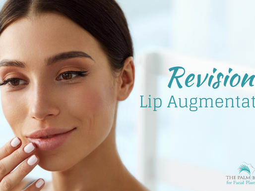 Revision Lip Augmentation