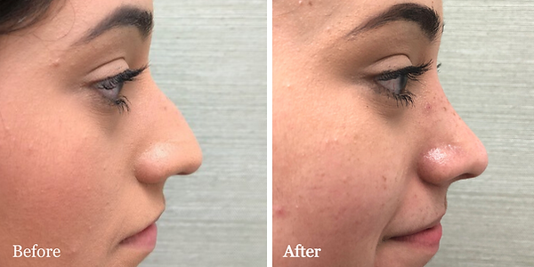 Rhinoplasty by Dr. Azzi in Jupiter, Flor