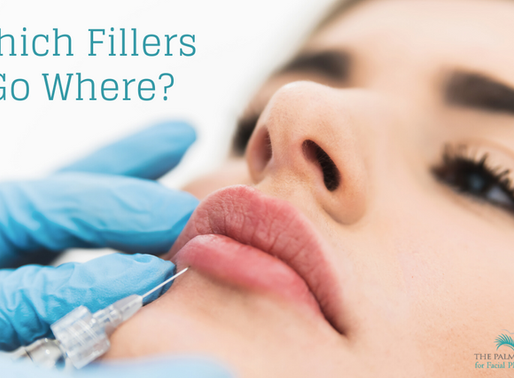 Which Facial Fillers Go Where?
