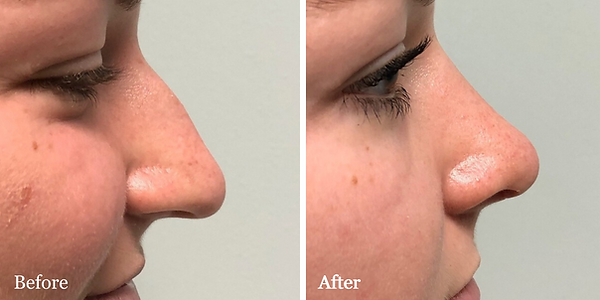 Nose job (rhinoplasty) by Dr. Azzi in Pa