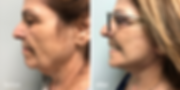 Facelift and Neck Lift in Jupiter Florid