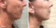 Dr. Azzi facelift & necklift in Palm Bea
